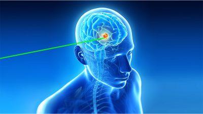 proton therapy brain scan photo