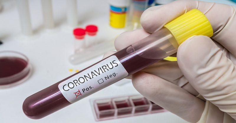 coronavirus - Hand holds test tube for Coronavirus 2019-nCOV analysis.